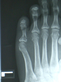 fracture_of_toe